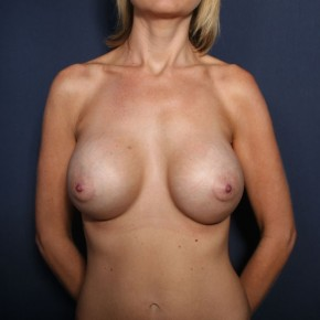 After Photo - Breast Revision - Case #13285 - 33 Year Old Female - Frontal View