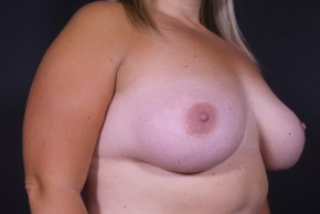 After Photo - Breast Augmentation - Case #13292 - Breast Augmentation with Round Silicone Implants and Mastopexy - Oblique View