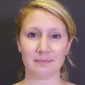 Before Photo - Liposuction - Case #13295 - Chin Liposuction - Frontal View