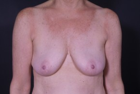 After Photo - Breast Revision - Case #13297 - Bilateral Breast Implant Removal - Frontal View