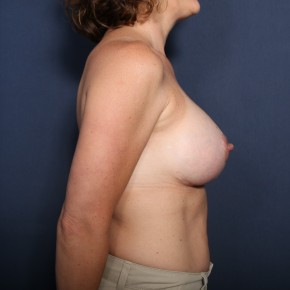 After Photo - Breast Lift - Case #13303 - 43 Years Old Female - Lateral View