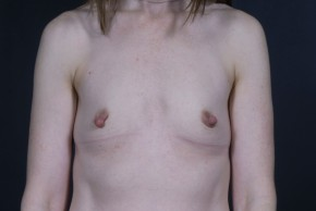 Before Photo - Breast Augmentation - Case #13304 - Breast Augmentation with Round Silicone Implants - Frontal View