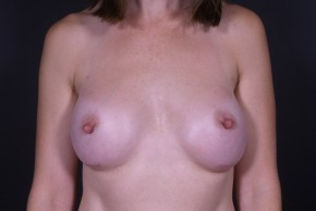 After Photo - Breast Augmentation - Case #13304 - Breast Augmentation with Round Silicone Implants - Frontal View