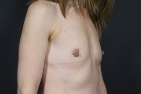 Before Photo - Breast Augmentation - Case #13304 - Breast Augmentation with Round Silicone Implants - Oblique View