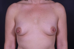 Before Photo - Buttock Augmentation - Case #13305 - Breast Augmentation with Round Silicone Implants - Frontal View