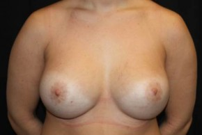 After Photo - Breast Revision - Case #13324 - Implant Exchange with Breast Lift - 25 year old female - Frontal View