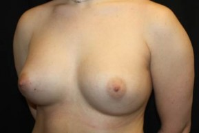 Before Photo - Breast Revision - Case #13324 - Implant Exchange with Breast Lift - 25 year old female - Oblique View
