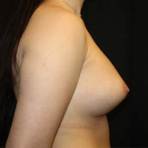 Before Photo - Breast Revision - Case #13324 - Implant Exchange with Breast Lift - 25 year old female - Lateral View