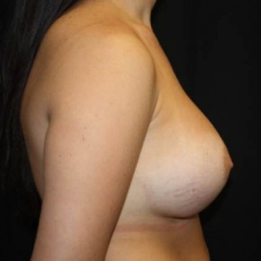 After Photo - Breast Revision - Case #13324 - Implant Exchange with Breast Lift - 25 year old female - Lateral View
