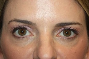 Before Photo - Eyelid Surgery - Case #13325 - Upper Lid Blepharoplasty - 42 year old female - Frontal View