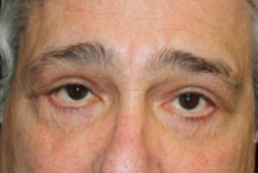 After Photo - Eyelid Surgery - Case #13327 - Blepharoplasty - 61 year old male - Frontal View