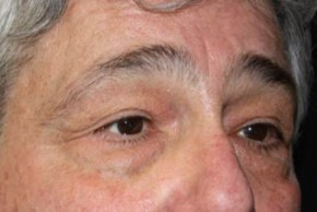 Before Photo - Eyelid Surgery - Case #13327 - Blepharoplasty - 61 year old male - Oblique View