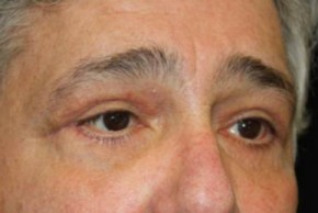 After Photo - Eyelid Surgery - Case #13327 - Blepharoplasty - 61 year old male - Oblique View