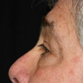 Before Photo - Eyelid Surgery - Case #13327 - Blepharoplasty - 61 year old male - Lateral View