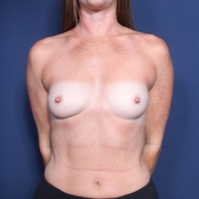 Before Photo - Breast Augmentation - Case #13329 - 34 Year Old Female - Frontal View