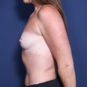 Before Photo - Breast Augmentation - Case #13329 - 34 Year Old Female - Lateral View
