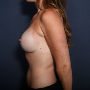 After Photo - Breast Augmentation - Case #13329 - 34 Year Old Female - Lateral View