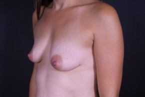 Before Photo - Breast Augmentation - Case #13308 - Breast Augmentation with Shaped Silicone Implants - Oblique View