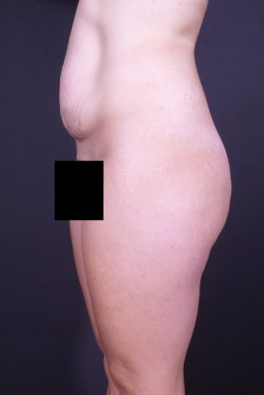 Before Photo - Tummy Tuck - Case #13333 - Abdominoplasty  - Lateral View