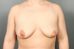Before Photo - Breast Lift - Case #13334 - Breast Lift with Round Silicone Implants - Frontal View
