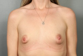 Before Photo - Breast Lift - Case #13335 - Breast Lift with Saline Implants - Frontal View