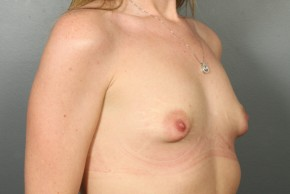 Before Photo - Breast Lift - Case #13335 - Breast Lift with Saline Implants - Oblique View
