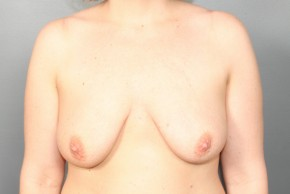 Before Photo - Breast Lift - Case #13337 - Breast Lift with Round Silicone Implants - Frontal View