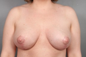 After Photo - Breast Lift - Case #13337 - Breast Lift with Round Silicone Implants - Frontal View
