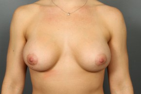 After Photo - Breast Augmentation - Case #13338 - Breast Augmentation with Right Mastopexy - Frontal View