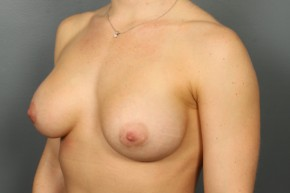 After Photo - Breast Augmentation - Case #13338 - Breast Augmentation with Right Mastopexy - Oblique View