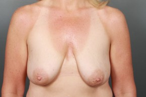 Before Photo - Breast Lift - Case #13339 - Breast Lift with Saline Implants - Frontal View