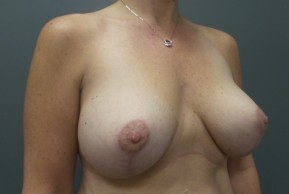 After Photo - Breast Lift - Case #13339 - Breast Lift with Saline Implants - Oblique View