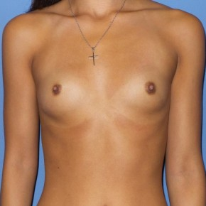 Before Photo - Breast Augmentation - Case #13348 - 23 y/o female with breast augmentation - Frontal View