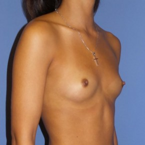Before Photo - Breast Augmentation - Case #13348 - 23 y/o female with breast augmentation - Oblique View