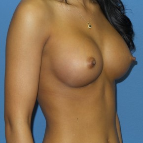 After Photo - Breast Augmentation - Case #13348 - 23 y/o female with breast augmentation - Oblique View