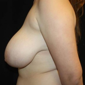 Before Photo - Breast Reduction - Case #13362 - Breast Reduction - 18 year old female - Lateral View