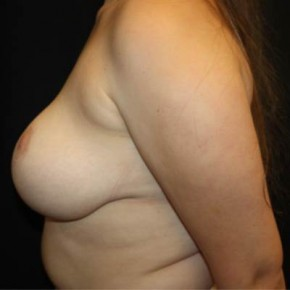 After Photo - Breast Reduction - Case #13362 - Breast Reduction - 18 year old female - Lateral View