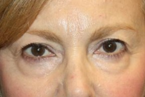 Before Photo - Eyelid Surgery - Case #13363 - Blepharoplasty - Upper Lids Only - 66 year old female - Frontal View