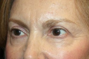 After Photo - Eyelid Surgery - Case #13363 - Blepharoplasty - Upper Lids Only - 66 year old female - Oblique View