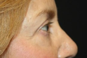 After Photo - Eyelid Surgery - Case #13363 - Blepharoplasty - Upper Lids Only - 66 year old female - Lateral View