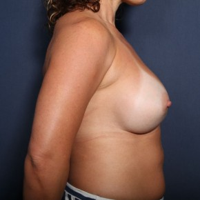 After Photo - Breast Revision - Case #13377 - 41 Year Old Female - Lateral View
