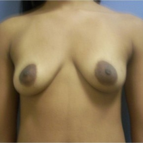 Before Photo - Breast Augmentation - Case #13387 - Frontal View