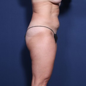 Before Photo - Tummy Tuck - Case #13393 - 48 Year Old female - Lateral View