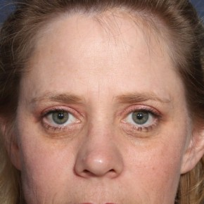 Before Photo - Eyelid Surgery - Case #13394 - 44 year old female - Frontal View