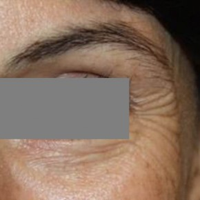 Before Photo - Botulinum Toxin - Case #13395 - Botox Crows - 39 year old female - Lateral View