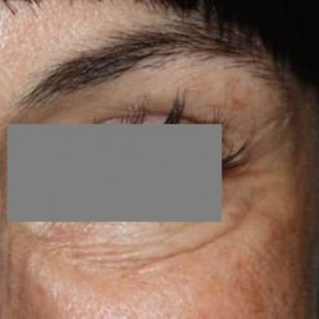 After Photo - Botulinum Toxin - Case #13395 - Botox Crows - 39 year old female - Lateral View