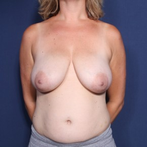 Before Photo - Breast Lift - Case #13398 - 38 Years Old Female - Frontal View