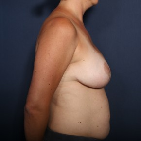 After Photo - Breast Lift - Case #13398 - 38 Years Old Female - Lateral View
