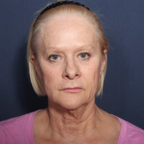 Before Photo - Facelift - Case #13399 - 67 Years Old Female - Frontal View
