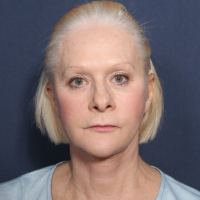 After Photo - Facelift - Case #13399 - 67 Years Old Female - Frontal View